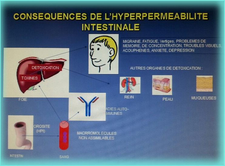 Les principales causes du « leaky gut syndrome »